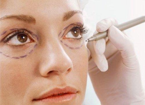 контурная пластика вокруг глаз