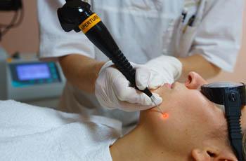 лазерная процедура по удалению образований на коже