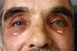 ксантелазмы на лице лечение