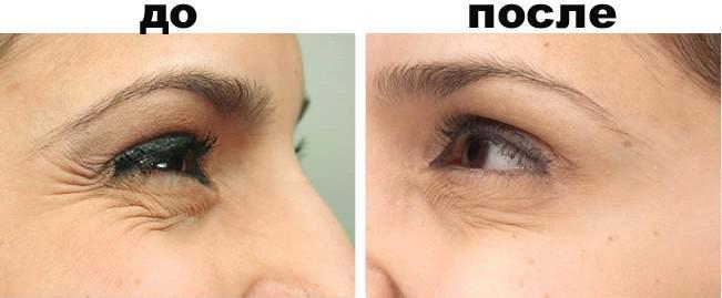 уколы ботокса под глазами